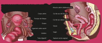 Endométriose - Association ENDOmind